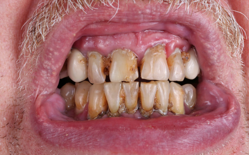 Man with advanced periodontal disease