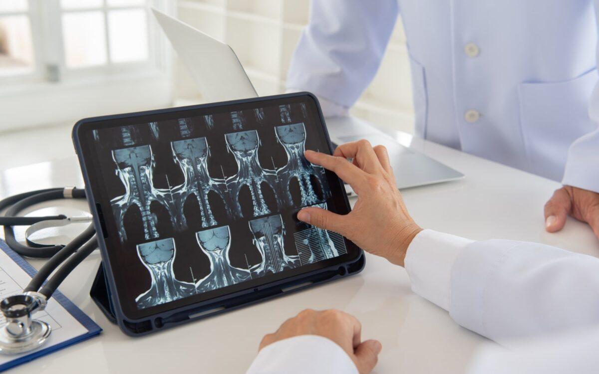 X-Rays For Bone Graft